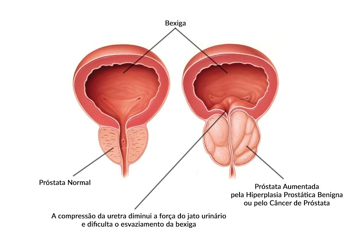 quais são as causas do câncer de próstata